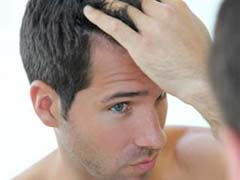 Frontal Hair Loss Treatment